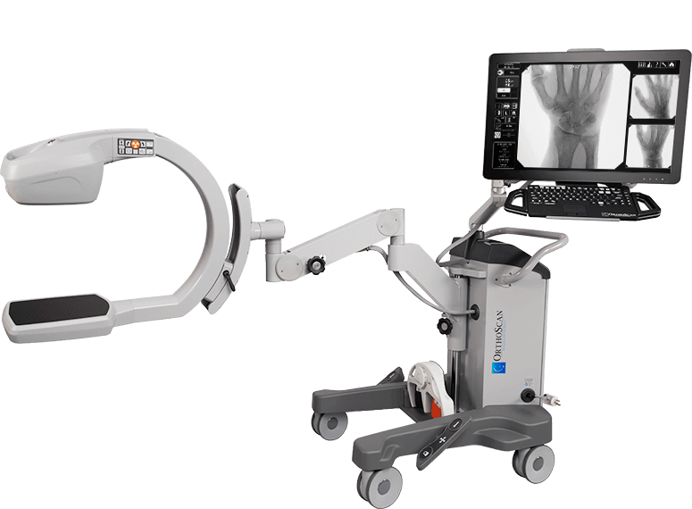 OrthoScan FD Pulse mini c-arm